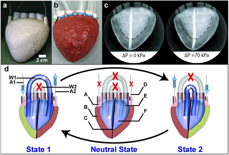 artificial heart using elastomer foam
